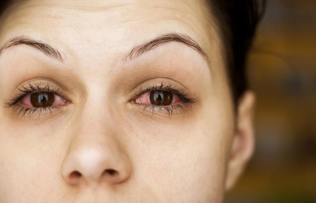 eye keeps twitching due to Eye Allergies