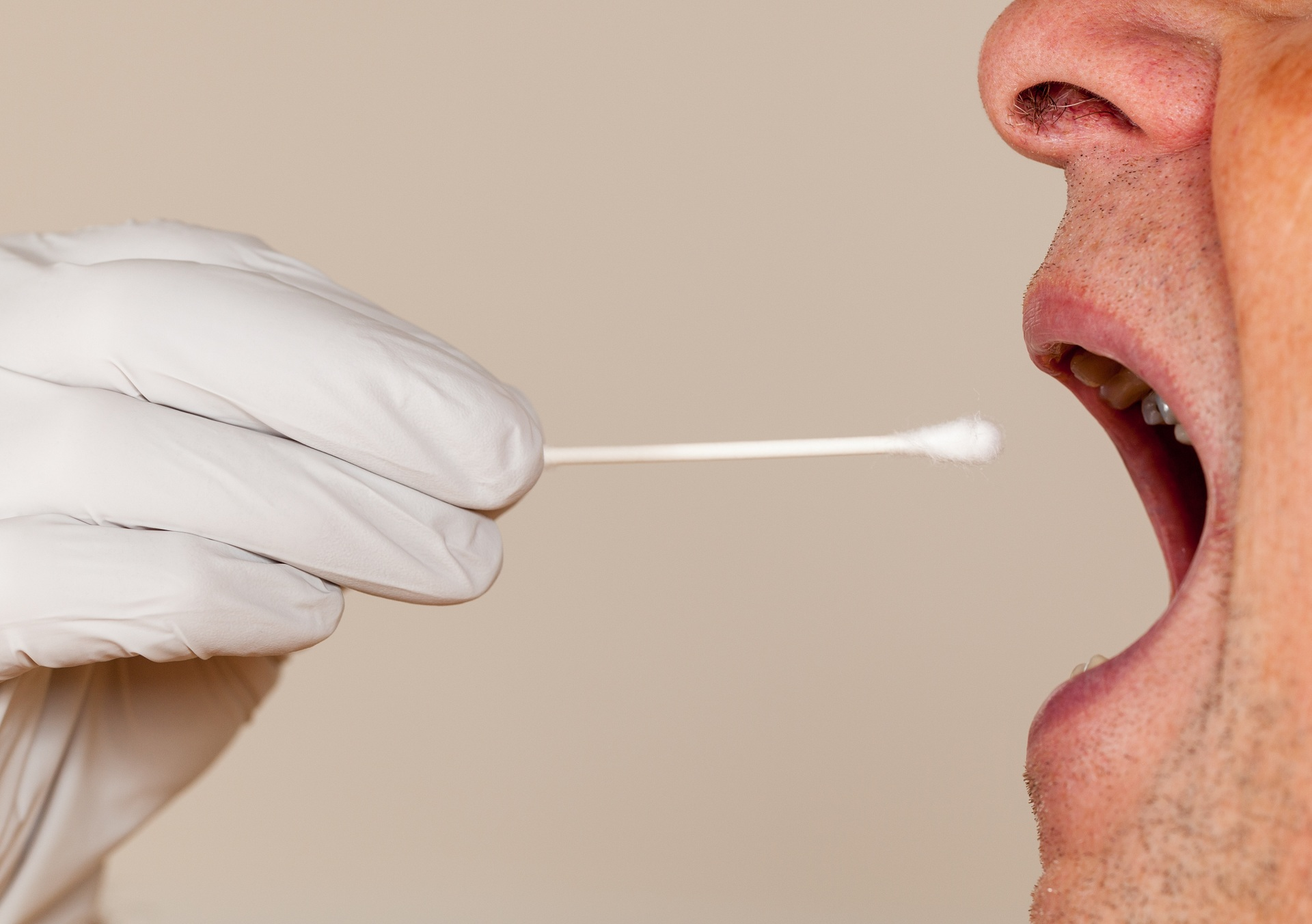 How long does marijuana stay in your saliva?