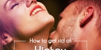 How to get rid of hickey