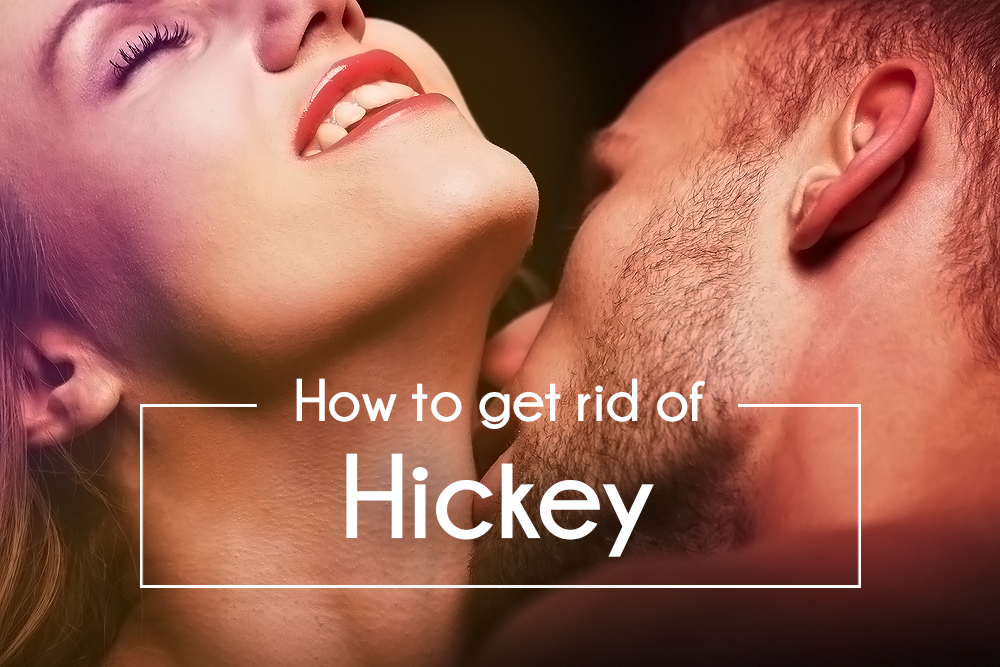 How to make a hickey go away