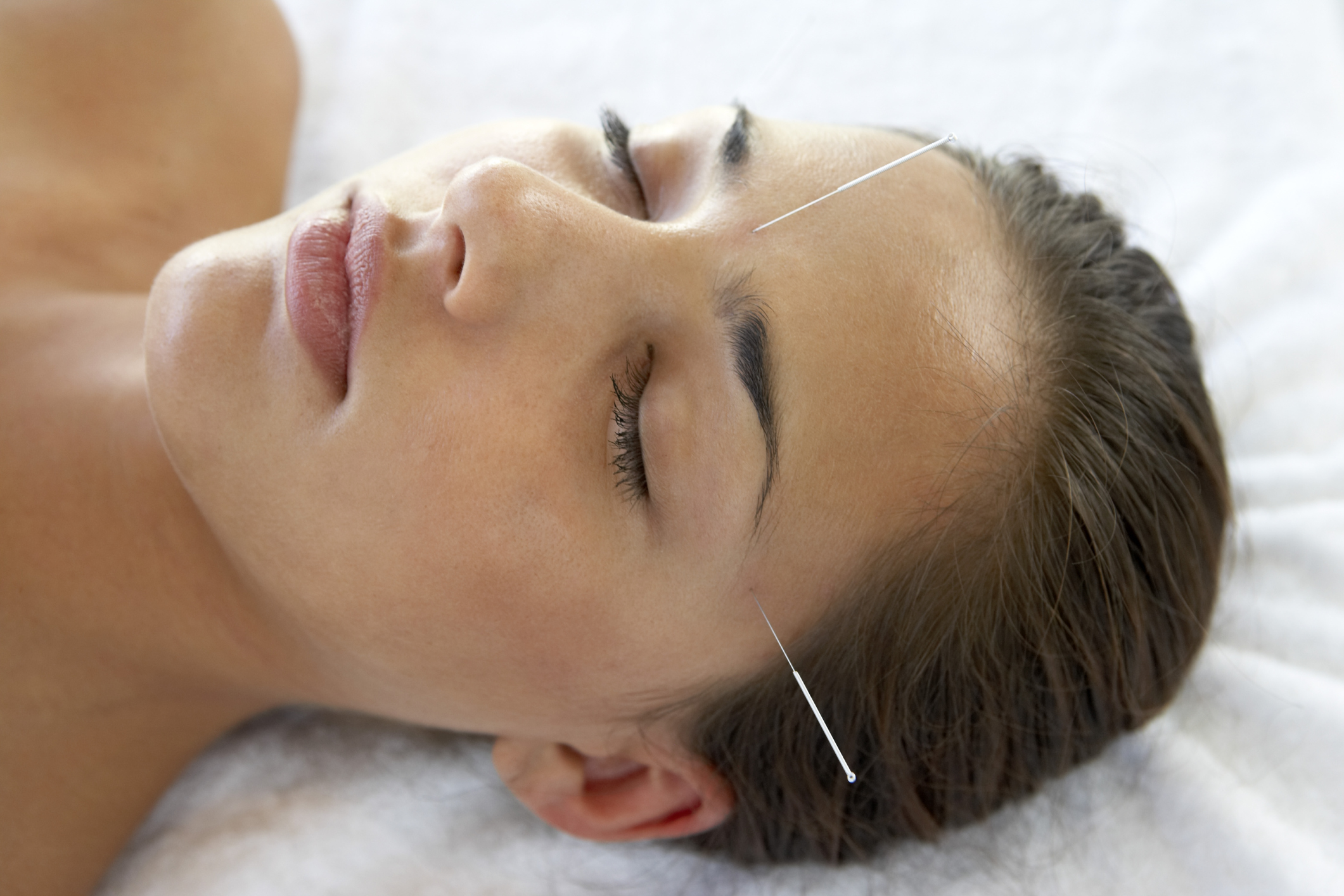 acupuncture-to-cure-headaches