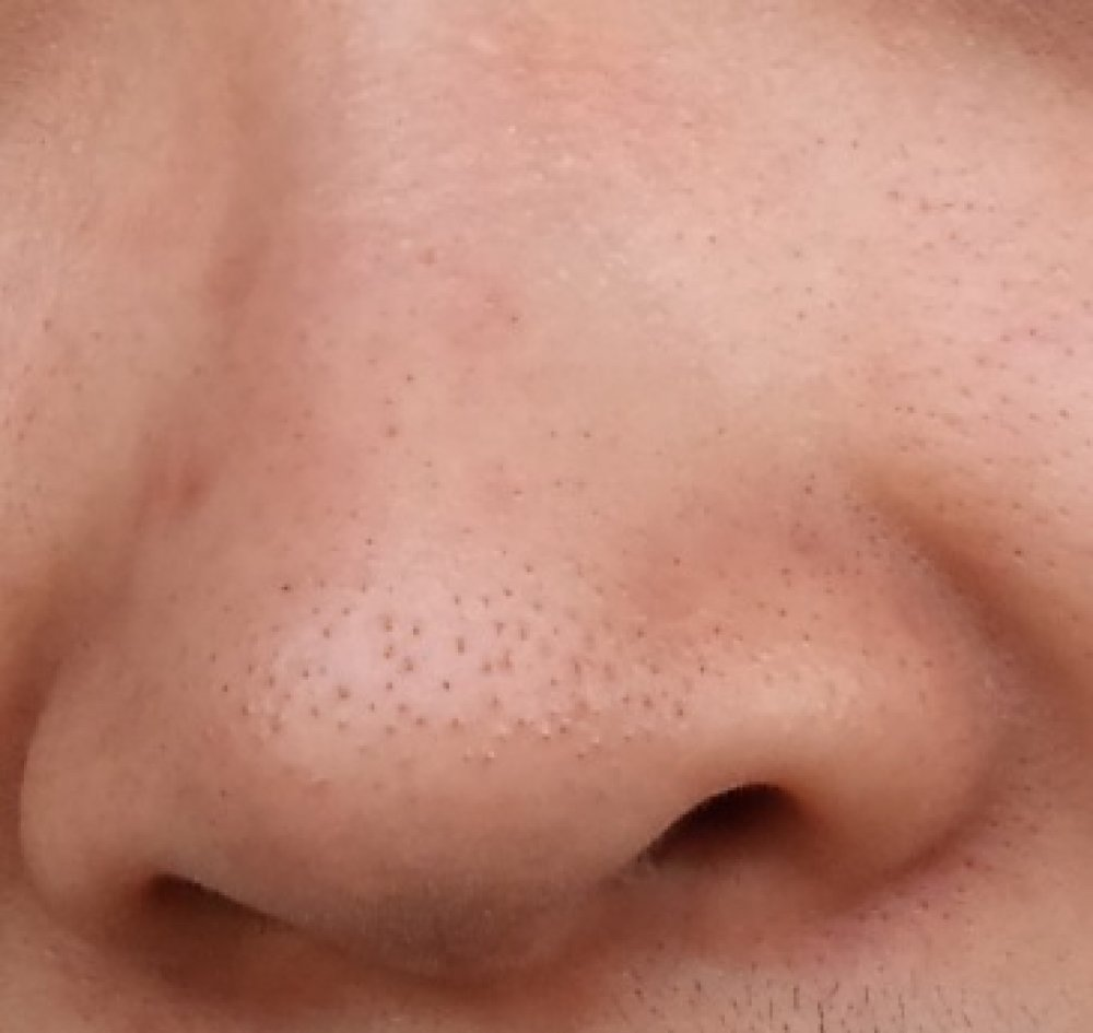 how to get rid of blackheads on nose fast