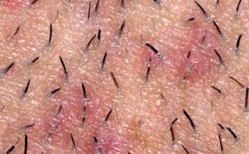 how to get rid of razor bumps fast