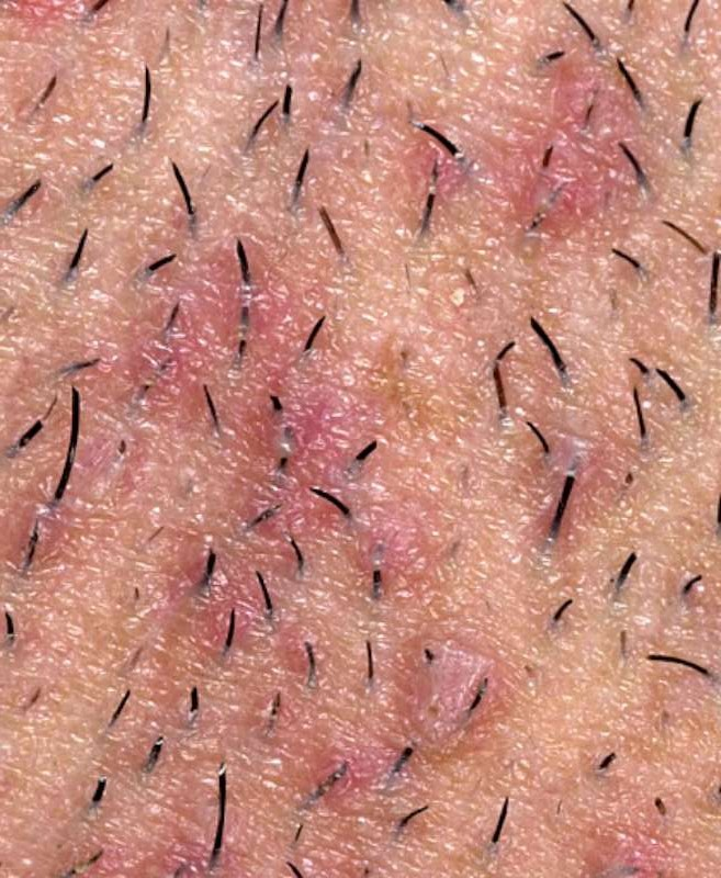 Ingrown hair diagram