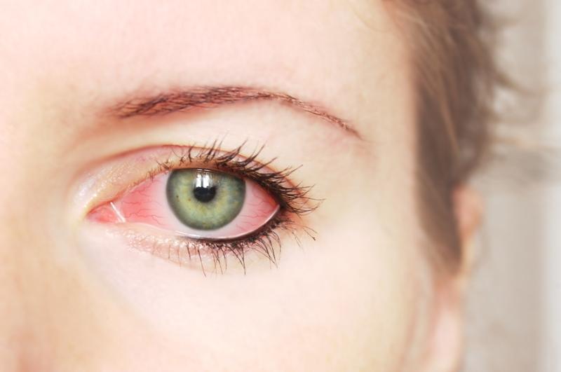 Causes Pink Eye