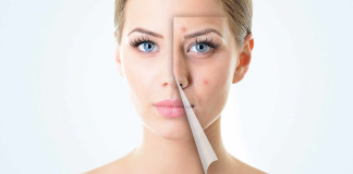 HOW TO GET RID OF ACNE SCARS - Home remedies for acne scars