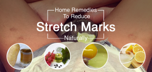 Home Remedies To Get Rid Of Stretch Marks