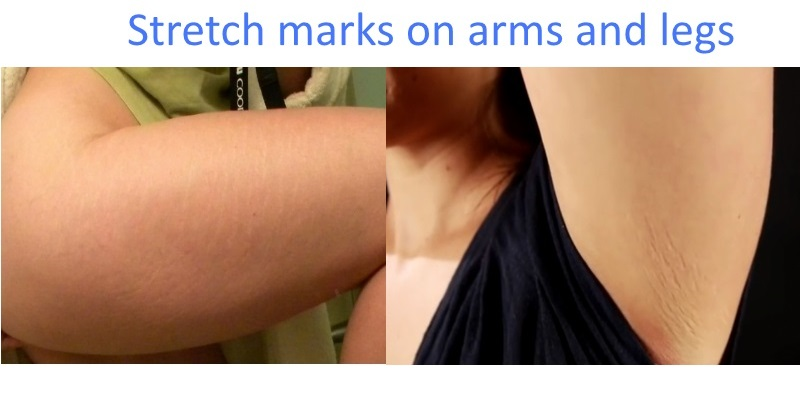 Stretch marks on arms and legs