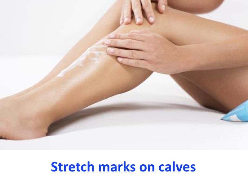 Stretch marks on calves