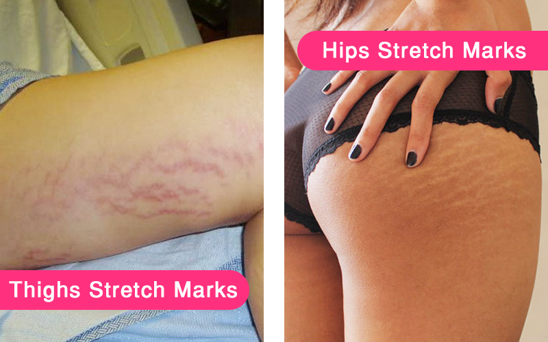 How To Get Rid Of Stretch Marks On Thighs Naturally