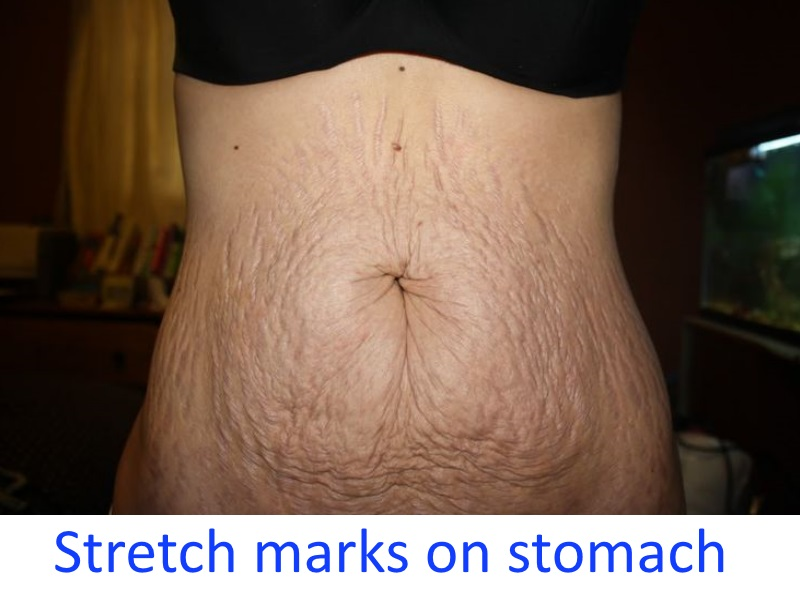 Stretch marks on stomach