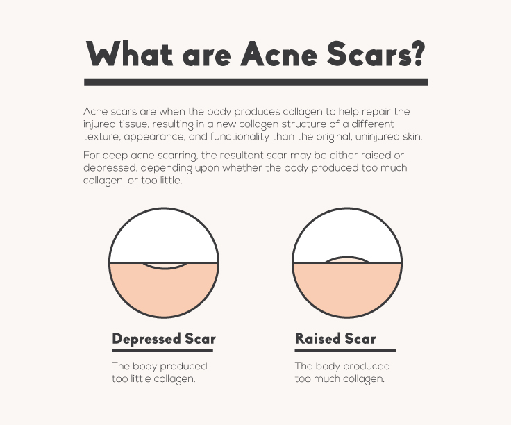 What Is acne scars
