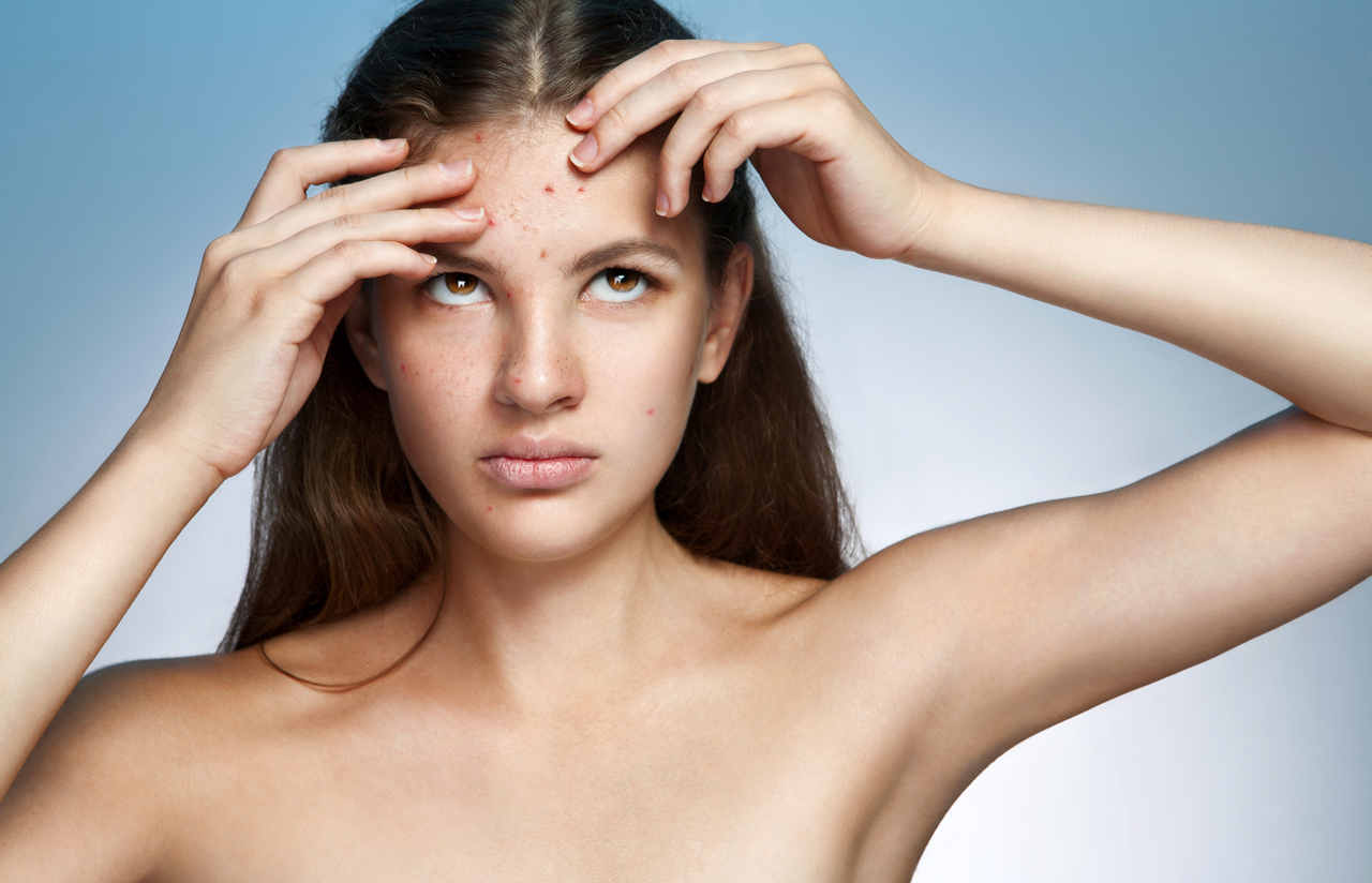how to get rid of acne scars fast naturally