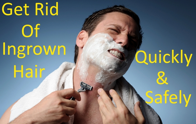 Get Rid Of Ingrown Hair Quickly And Safely