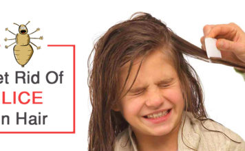 Get Rid Of Lice in Hair