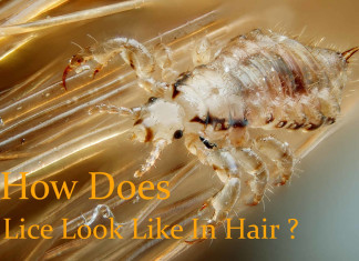 What Does Lice Look Like In Hair