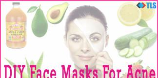 face masks for acne