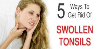 Get Rid Of Swollen Tonsils
