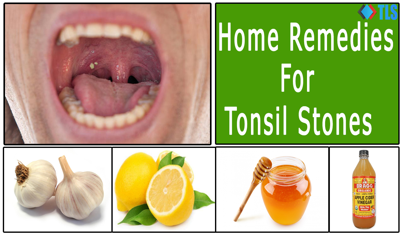 Tonsil Stones Natural Treatment