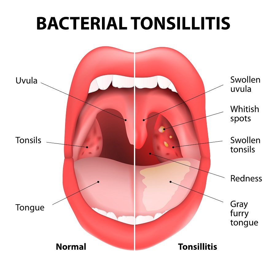 White Spots On Tonsils