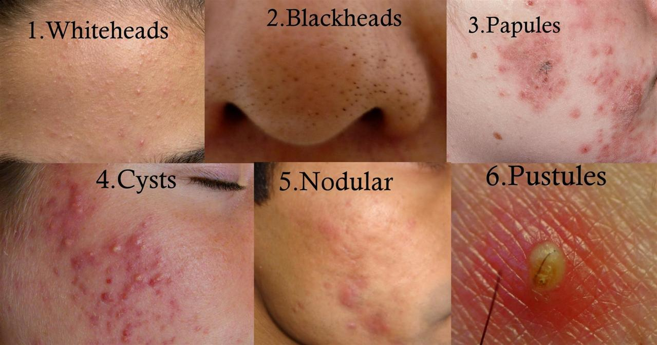 how to get rid of acne - a complete guide to zit-free face, Human Body