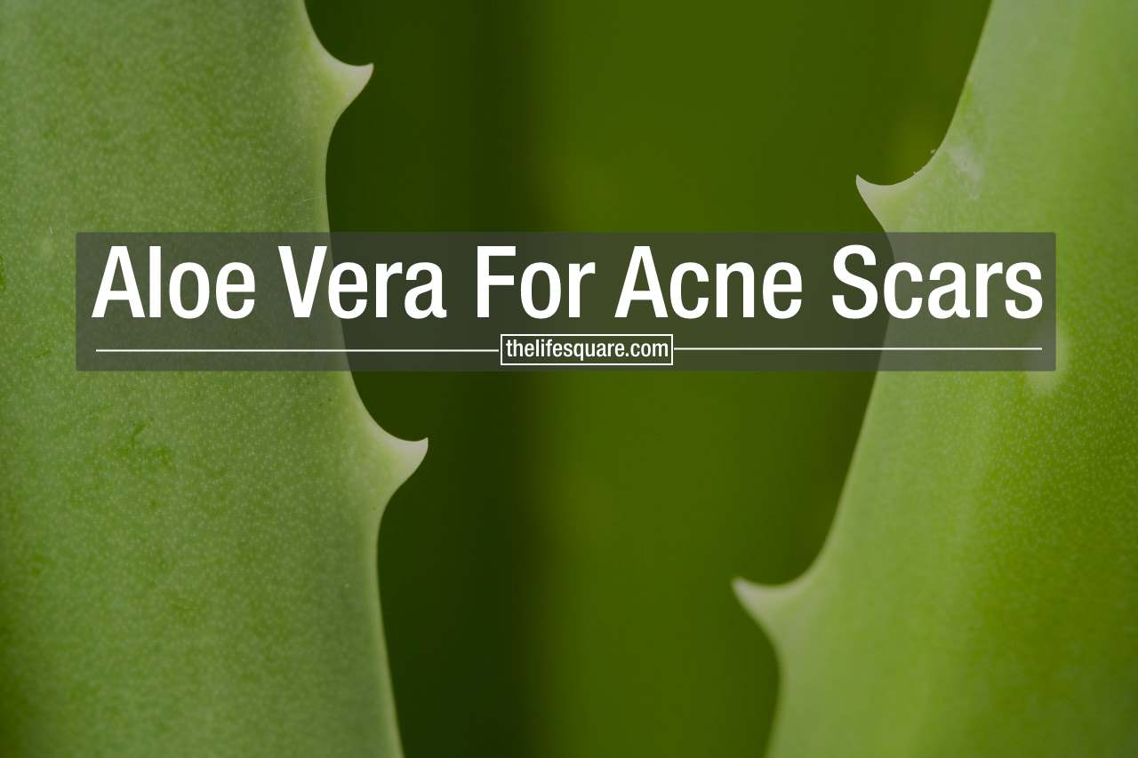 Can Aloe Vera Get Rid Of Acne