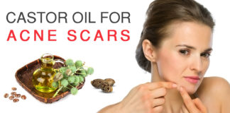 Castor Oil for Acne Scars