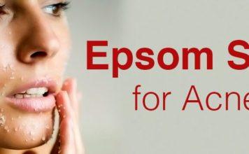 Epsom Salt for Acne