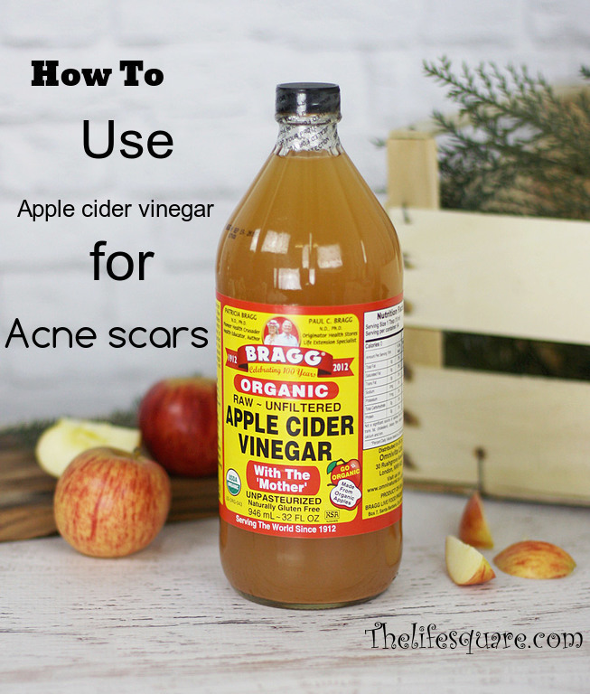 Why and how to use apple cider vinegar to cure acne scars