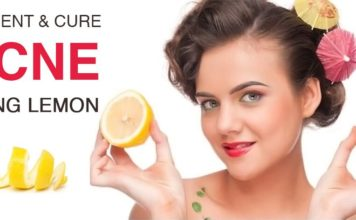 How to Cure Acne Using Lemon