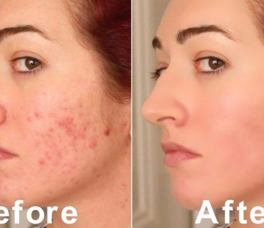 How to shrink open pores